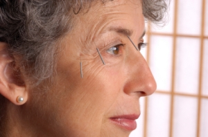 Mature, older woman with cosmetic acupuncture needles inserted in her face